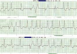 pacemaker ekg