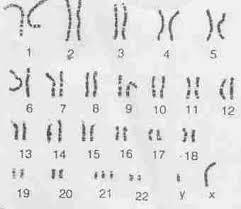 chromosomes abnormalities