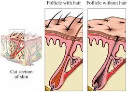 alopecia hair