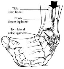 ankle ligament strain