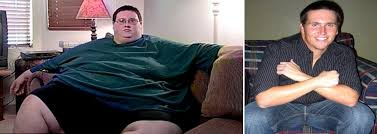 extreme weight loss