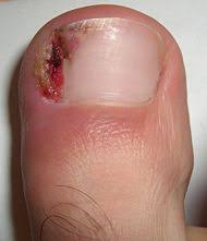 curved toe nails