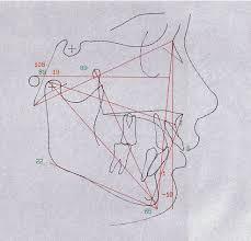 cephalometric