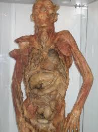 embalming bodies
