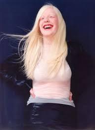 human albinism