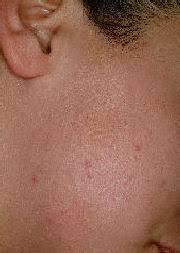 laser hair removal sideburns