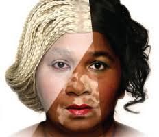 black skin bleach