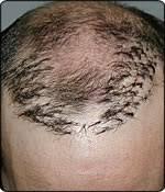 hair plugs for men