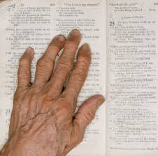 arthritis hands pictures