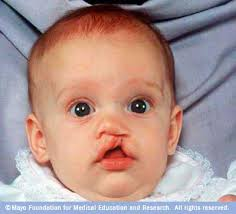 cleft lip or cleft palate