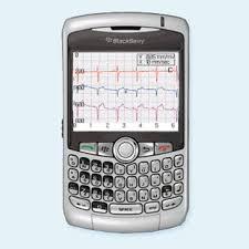 mobile ekg