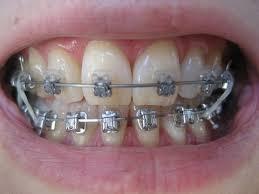 braces rubber bands