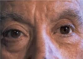 protesis oculares