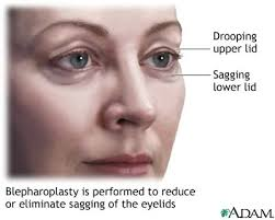 blepharoplasty pictures