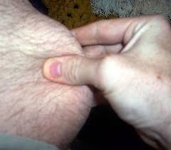 loose skin thighs