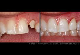 cap tooth