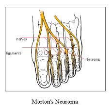 digital nerve