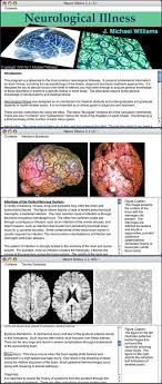 neurological brain