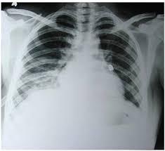 mediastinal chest tube