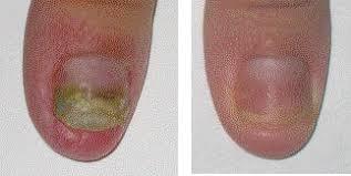fungi nails