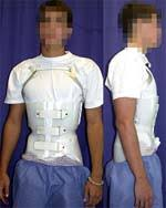 kyphosis exercise