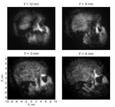 abnormal mri brain scan