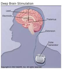 deep brain stimulator