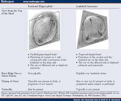 positional plagiocephaly photos