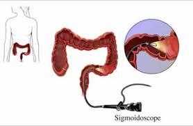 flexible sigmoidoscope