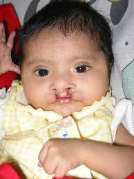 bilateral cleft