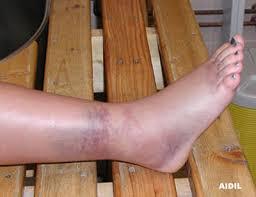 ankle sprain grade 2