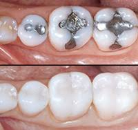 fillings dental