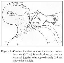 central vein access