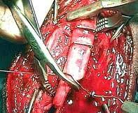 abdominal cerclage