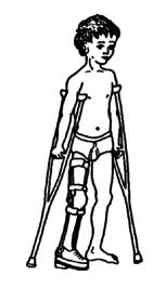 leg calipers