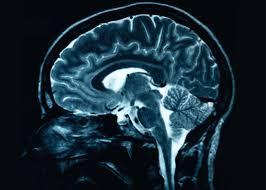 brain scan picture