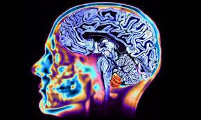 healthy brain mri