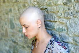 woman baldness