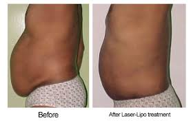 laser lipo pictures