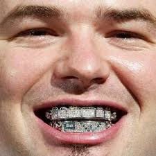 grillz for mouth