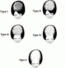hair growth patterns