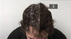 head dandruff