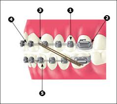 braces bracket