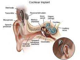 the cochlear implant uses