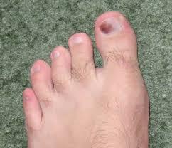 bruised toenails