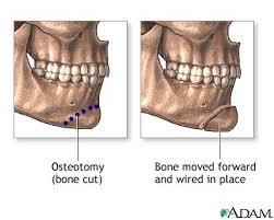 chin anatomy