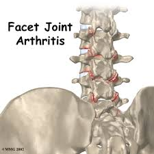 lumbar joints