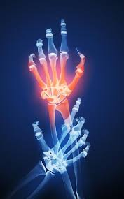 relieve arthritis pain