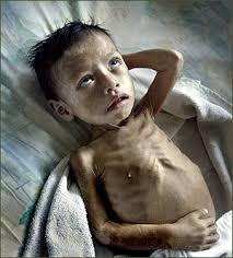 photos of malnourished children
