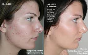 proactive before and after pictures
